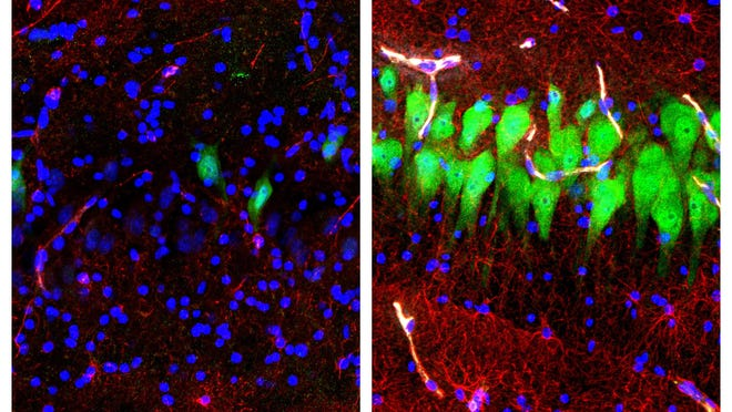 """This combination of images provided by the Yale School of Medicine shows stained microscope photos of neurons, green; astrocytes, red, and cell nuclei, blue, from a pig brain left untreated for 10 hours after death, left, and another with a specially designed blood substitute pumped through it. By medical standards """"this is not a living brain,"""" said Nenad Sestan of the Yale School of Medicine, one of the researchers reporting the results Wednesday, April 17, 2019, in the journal Nature. But the work revealed a surprising degree of resilience within a brain that has lost its supply of blood and oxygen, he said."""