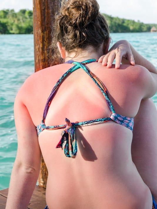 Back of woman in bikini with a sunburn