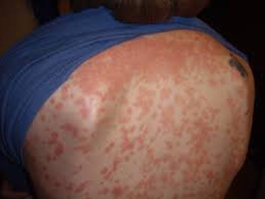 Psoriasis is caused when cells build up rapidly on the skin causing red, scaly patches.