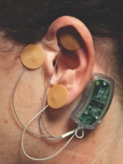 The Bridge device is placed behind the ear and send gentle electrical impulses through electrodes to the brain.