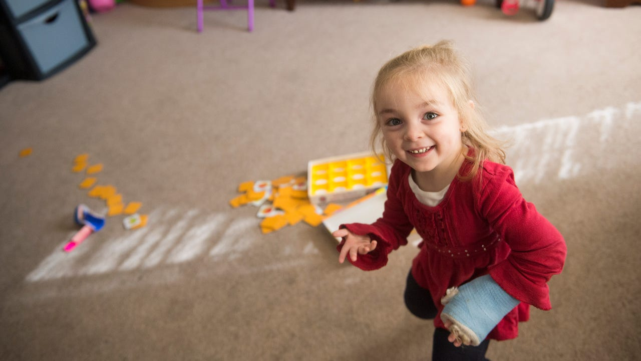 "Alaina Crone, 3, talks about how the doctor made her casts look like a ""rainbow,"" just as she had wanted."