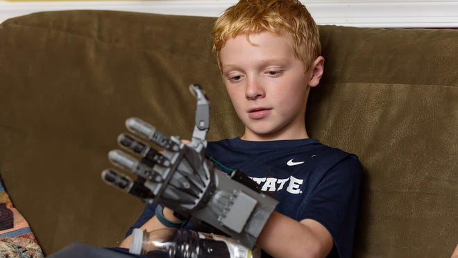 Putting all of the 3-D-printed parts together into a hand that would clasp its fingers at the flip of his wrist took Colin Consavage and his mom about two days.