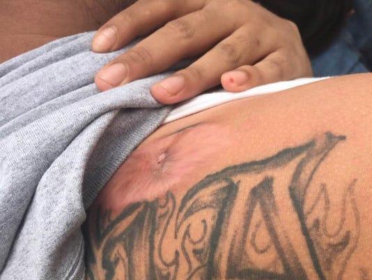 Bullet scar