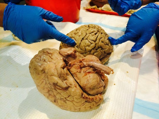 A human brain on display Saturday at Brain Day at Michigan Science Center in Detroit.