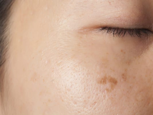 Melasma Skin Condition Darkens Summer