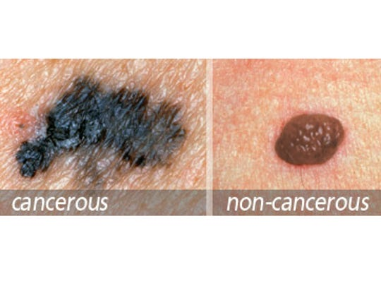 B: Border - The borders of an early melanoma tend to be uneven. The edges of the mole may be scalloped or notched.