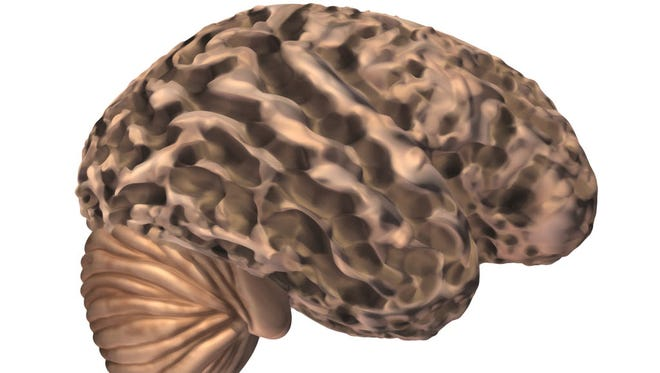 An illustration of a brain with advanced Alzheimer's.
