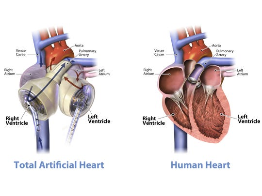 A SynCardia illustration shows how the total artificial