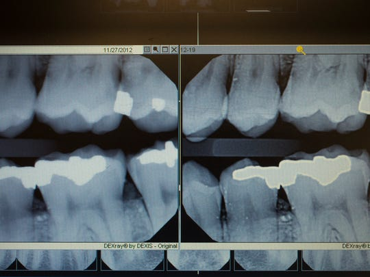 Occasionally, dental records and post-mortem X-rays help identify remains.