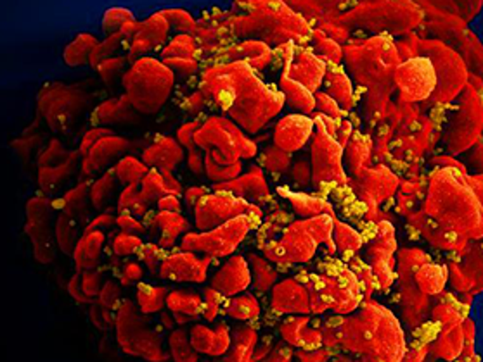 CDC image of the HIV virus