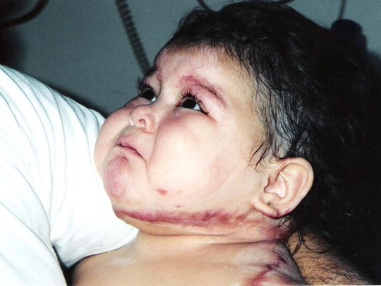 Karizma Vargas suffered severe brain damage after an accident when she was 14 months old.
