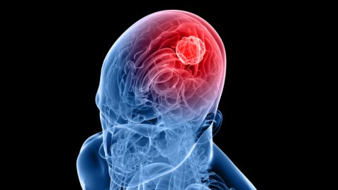 There are nearly 700,000 people in the U.S. living with a brain tumor and it's a leading cause of cancer-related deaths in children and in men and women ages 20-39. Nearly 70,000 new cases of primary brain tumors will be diagnosed this year.