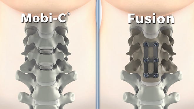A new medical device, called the Mobi-C, may reduce the need to have follow-up neck surgery years later.