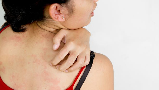 How do you alleviate the symptoms of chronic hives?