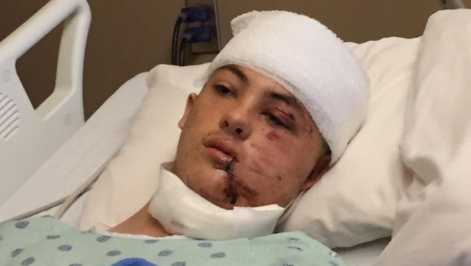 Gabriel Alexander, 16, talks about being attacked by a bear. The teen is recovering at Mission Hospital.