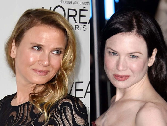 Rene Zellweger today, left, and in 2004.