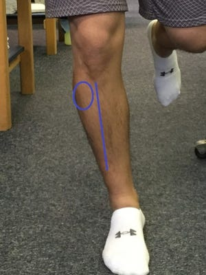 General pain areas of where anterior shin splints could occur.