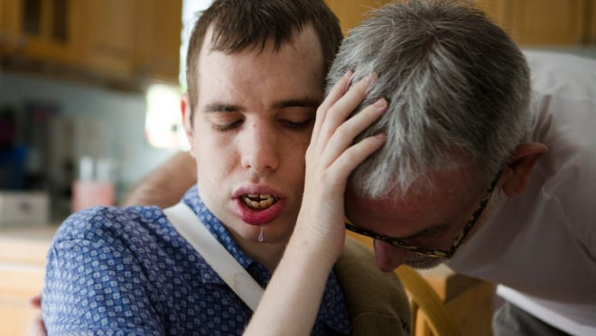 William Plott, 27, who has suffered from severe epileptic seizures since he was six-month-old, pets his father, Glenn Plott, on the head on Sunday, June 17, 2018, at their home in Cincinnati. William Plott is currently being treated for his epilepsy with a combination of drugs, one being a Marijuana derivative. William has never developed the ability to speak.