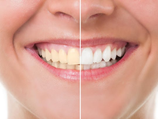 Teeth can get stained from certain food and beverages. Know the right techniques to keep them white.