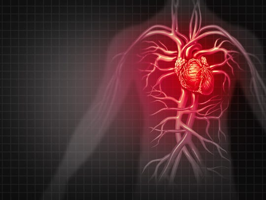 Coronary artery disease is a build-up of plaque in