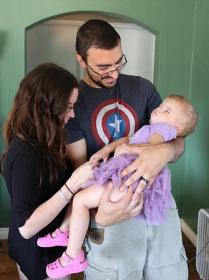 Oliver and Cherlyn Prescott hold their sleepy 1-year-old daughter, Olivia, on Tuesday, July 7, at their Scio home. Olivia had surgery for craniosynostosis, a birth defect that affects the baby's skull.