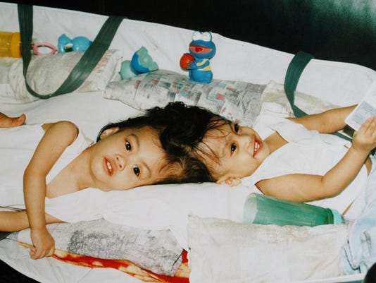 Conjoined Twins 1.jpg