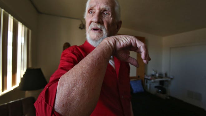 Alex Blume who lives at Linda Vista Senior Residence in Desert Hot Springs, shows off the small bed bug bites on his forearm on Monday.