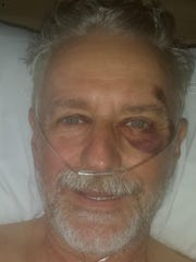 John Maurice of Keizer is seen after his crash at St. Charles Medical Center in Bend.