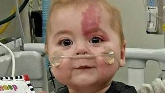 James Bruce is a 9-month-old undergoing a heart transplant. His parents and family are raising $50,000 for his expenses during and after the surgery.