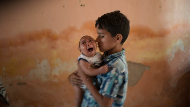 In this Dec. 23, 2015, file photo, 10-year-old Elison holds his 2-month-old brother Jose Wesley, who was born with microcephaly, at their house in Poco Fundo, Pernambuco state, Brazil. The Centers for Disease Control and Prevention said Wednesday, Jan. 13, 2016, that it has found the strongest evidence so far of a possible link between a mosquito-borne virus and a surge of birth defects in Brazil.