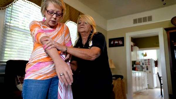 Pat Stephens, a survivor of domestic violence, puts on a prosthetic arm and is helped by younger sister Joy at their home in Lyman, S.C.