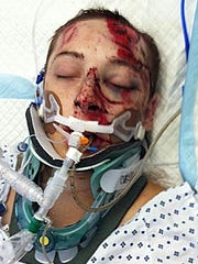 Michael McKenzie was struck by a car Friday night.