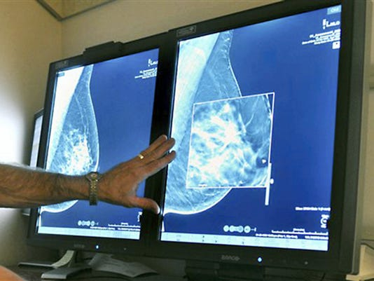 A radiologist compares an image from earlier, 2-D technology mammogram to 3-D Digital Breast Tomosynthesis mammography in Wichita Falls, Texas, in this photo from 2012. The technology can detect much smaller cancers earlier.