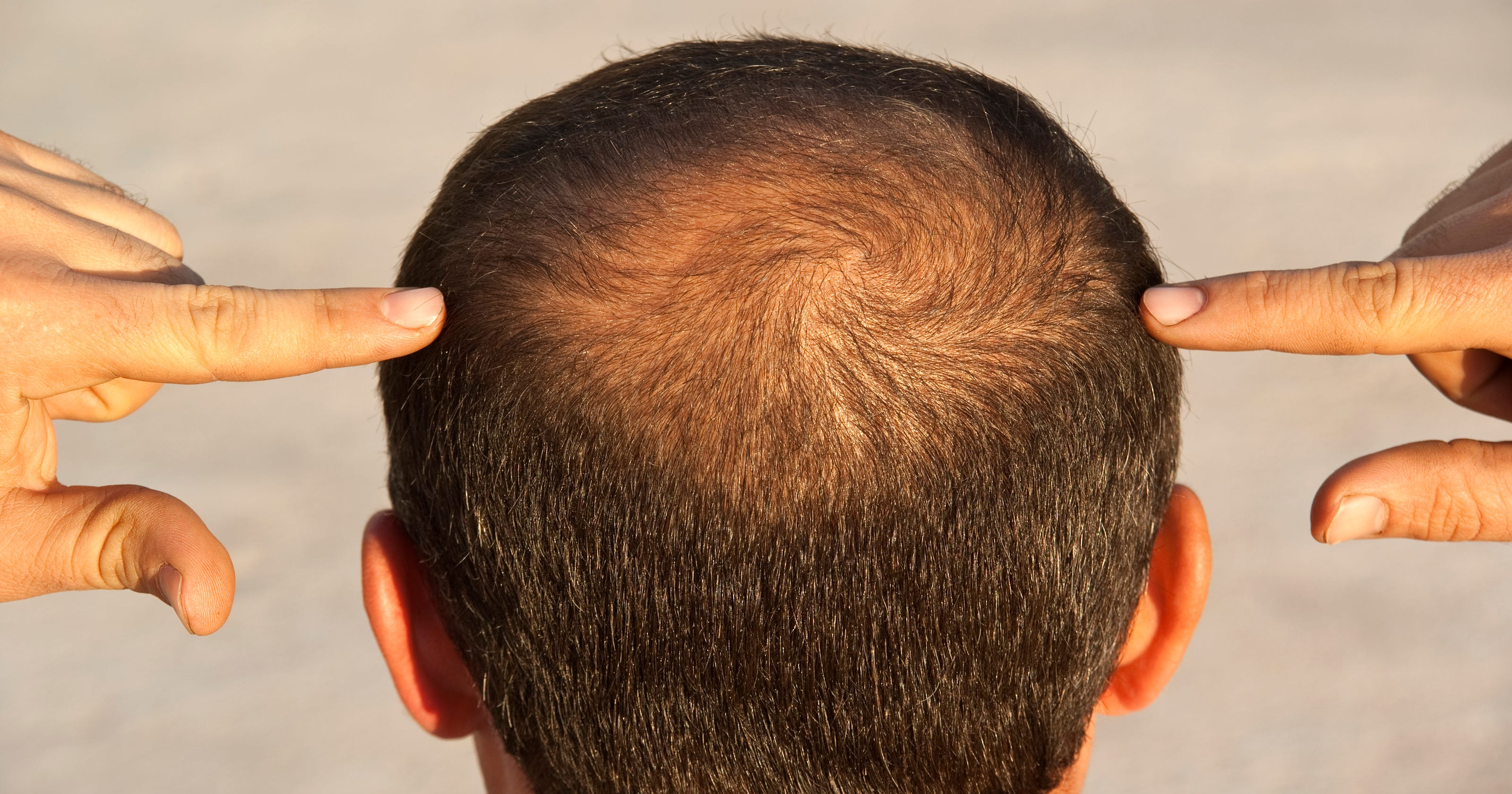 Baldness An Osteoporosis Drug Could Help Grow Hair