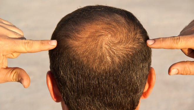 A drug used to treat osteoporosis might hold a cure for baldness.