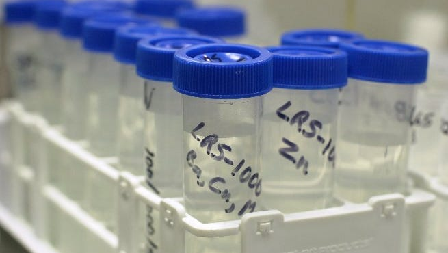 Laboratory testing of water, before and after municipal treatment, has come under increased scrutiny in the wake of Flint, Michigan's failure to alert customers to the presence of lead.