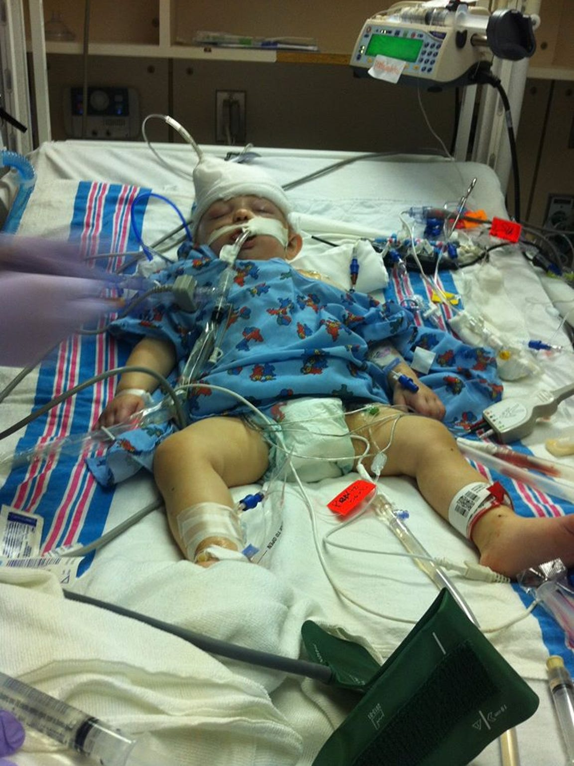 Cameron suffered a deadly brain injury.