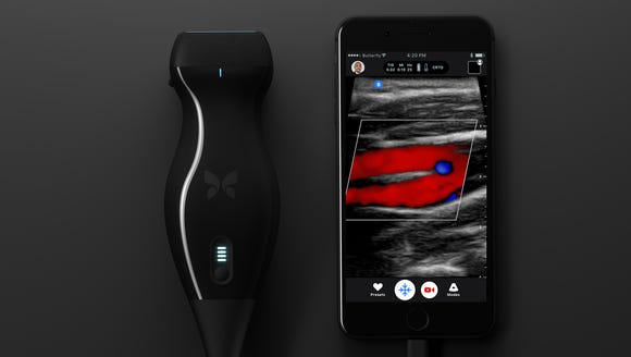 A novel iPhone-based portable ultrasound machine that can help detect cancer easily at home has been developed by US researchers. The device called Butterfly IQ is a scanner of the size of an.