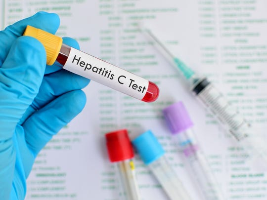Blood sample for hepatitis C virus testing