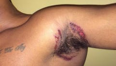 Photo of burn allegedly caused by Old Spice deodorant, filed as part of class-action lawsuit against Procter & Gamble Co.