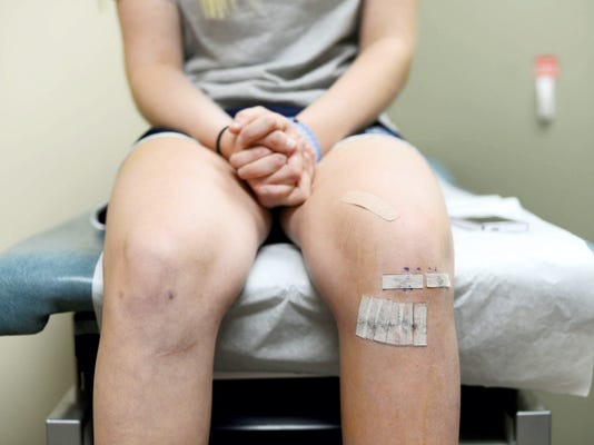 Haley Still, 16, sits on the exam table at the OSS Urgent Care and Orthopaedic office in Mechanicsburg. Still was being seen by Dr. Brian Bixler for a follow-up appointment after ACL surgery on her left knee. She had surgery on her right knee in 2013. During the past two decades, the American Academy of Pediatrics has reported a steady increase in the number of ACL tears among athletes younger than 18.
