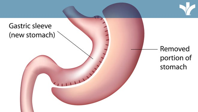 A relatively new option in bariatric surgery is the vertical sleeve gastrectomy, or gastric sleeve surgery.