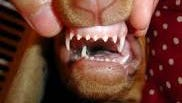 These needle-like teeth can really hurt when a puppy bites.