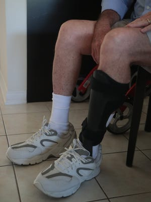 David Carden puts on a leg brace before going for a walk, Palm Springs, Calif., May 16, 2018. Carden suffers from neuropathy in his feet, which may have been caused by his exposure to Agent Orange when he was serving as a medic in Vietnam.