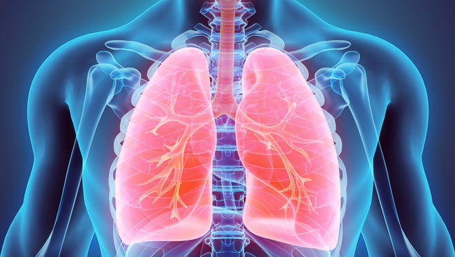 Lung cancer is the leading cause of cancer death among both men and women in the United States.