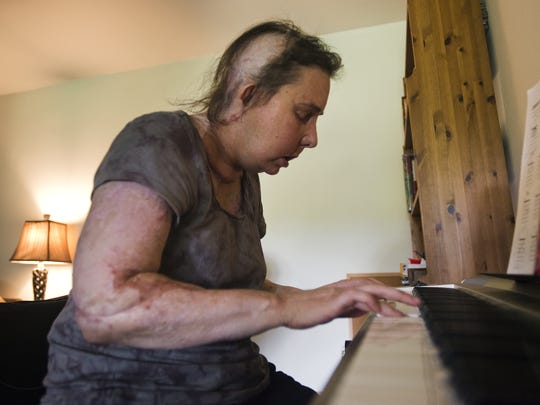 Carmen Tarleton, a Thetford woman who received a face transplant six months ago to replace the one her husband burned beyond recognition in 2007, turned to writing and music as a way to heal emotional wounds during a painful and slow physical recovery.