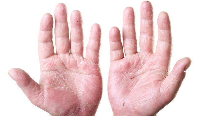 Eczema is long lasting (chronic) and tends to flare periodically and then subside.