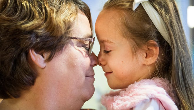 Brayden Dame, 6, nuzzles the nose of her grandma, Dawn Dame, at Shriners Hospitals for Children in Greenville on Friday, November 17, 2017.