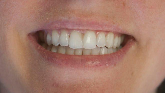 Free dental care April 17 in Belmar.