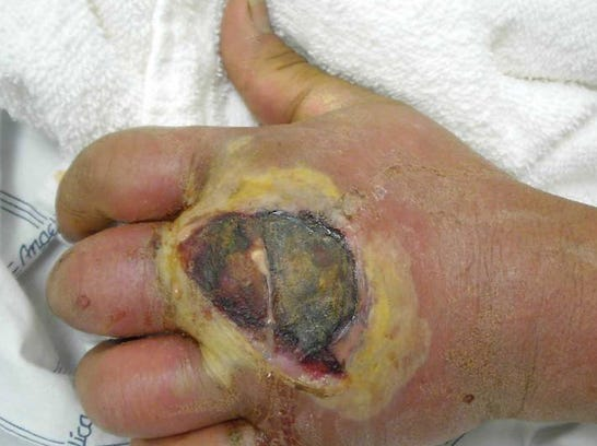 hand-mrsa-infection copy